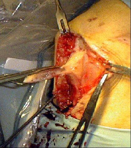 Voorste kruisband revalidatie zonder operatie